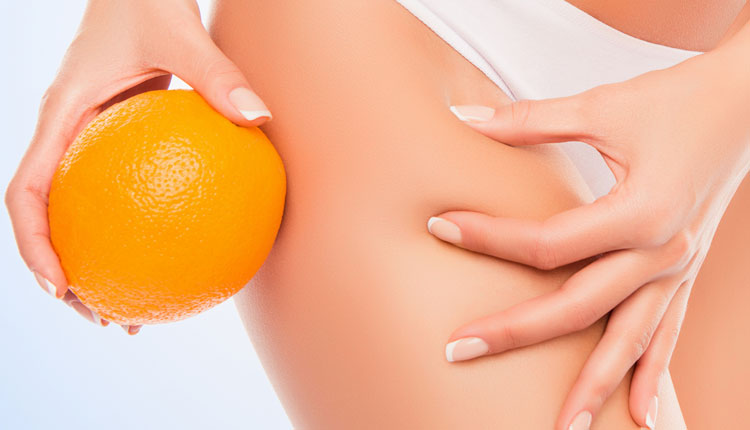 Cellulite: cos'è, come insorge, come si cura.